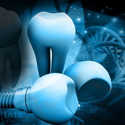 3D illustration of dental implants with DNA coils in background